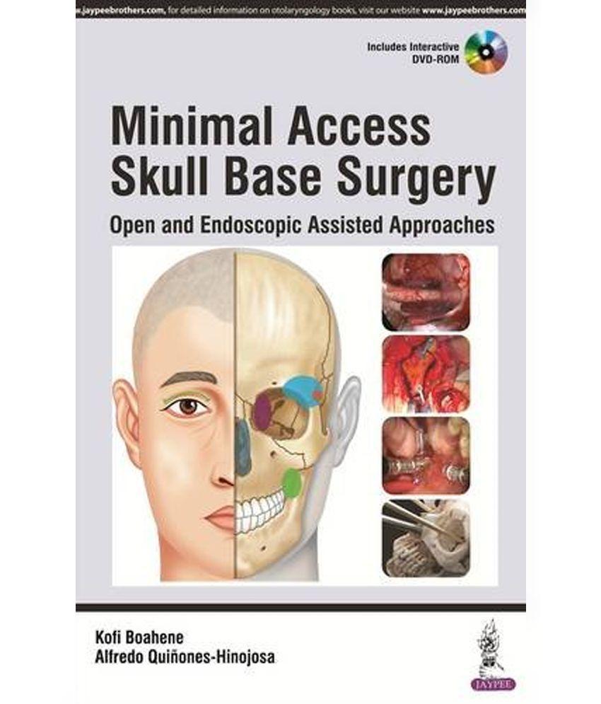 Minimal Access Skull Base Surgery: Buy Minimal Access Skull Base ...